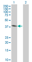 Western blot - PSMD6 antibody (ab88894)