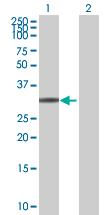 Western blot - TOMM34 antibody (ab88896)