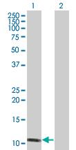 Western blot - HSPC152 antibody (ab88897)