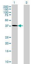 Western blot - NANS antibody (ab88899)