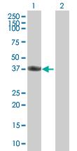 Western blot - FAM62B antibody (ab88900)