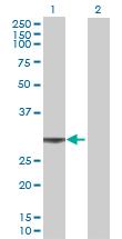 Western blot - BDNF antibody (ab88901)