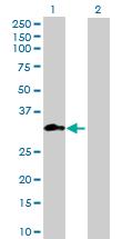 Western blot - METTL1 antibody (ab88912)