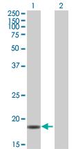 Western blot - PPIL3 antibody (ab88914)