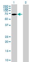 Western blot - CNDP2 antibody (ab88939)