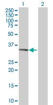 Western blot - SDSL antibody (ab88946)
