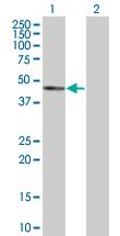 Western blot - NUDT12 antibody (ab88947)