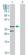 Western blot - MRRF antibody (ab88961)