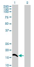 Western blot - CMTM5 antibody (ab88964)
