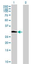 Western blot - EFHD1 antibody (ab88965)