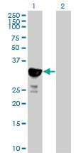 Western blot - NYS48 antibody (ab88968)
