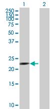 Western blot - PSMA7 antibody (ab88977)
