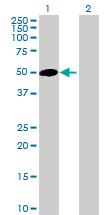 Western blot - RAB3IL1 antibody (ab88978)