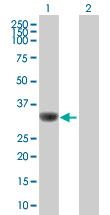 Western blot - SMN1+SMN2 antibody (ab88979)