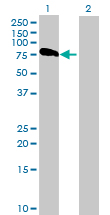 Western blot - ASMTL antibody (ab88981)