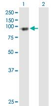 Western blot - PFKP antibody (ab89003)
