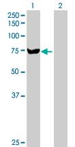 Western blot - SLC27A5 antibody (ab89008)