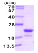 SDS-PAGE - RFK protein (His tag) (ab89009)