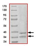 SDS-PAGE - CDK6 + CCND3 protein (His tag) (ab89010)