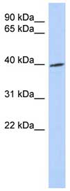 Western blot - TRIB1 antibody (ab89021)