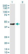 Western blot - STOML2 antibody (ab89025)