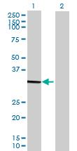 Western blot - MRPL28 antibody (ab89030)