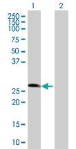 Western blot - ZNF266 antibody (ab89031)