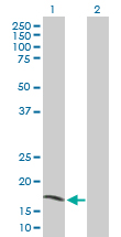 Western blot - AIMP3/p18 antibody (ab89033)