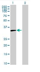 Western blot - LYSMD4 antibody (ab89035)