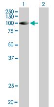 Western blot - DGKG antibody (ab89037)
