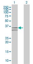 Western blot - TXNDC antibody (ab89039)