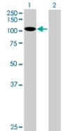 Western blot - DIS3L antibody (ab89042)