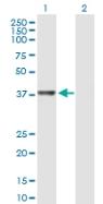 Western blot - RTCD1 antibody (ab89043)