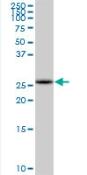 Western blot - COMTD1 antibody (ab89044)