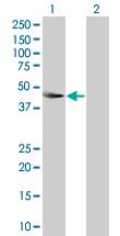 Western blot - THOC3 antibody (ab89051)