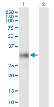 Western blot - HS2ST1 antibody (ab89052)