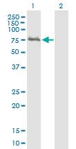 Western blot - WDTC1 antibody (ab89053)