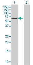 Western blot - DAK antibody (ab89057)