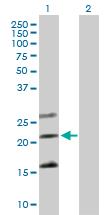 Western blot - Tmem27 antibody (ab89058)