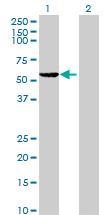 Western blot - ZNF577 antibody (ab89059)