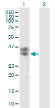 Western blot - CLEC5A antibody (ab89060)