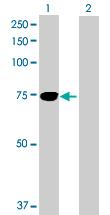 Western blot - TGFBI antibody (ab89062)