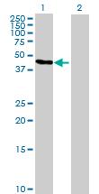Western blot - GTDC1 antibody (ab89063)