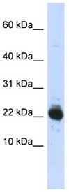 Western blot - Ube2L3 antibody (ab89065)
