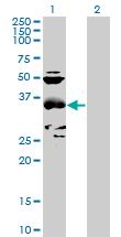 Western blot - CCBL1 antibody (ab89067)