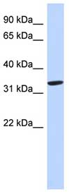 Western blot - Zinc Alpha 2 Glycoprotein antibody (ab89070)