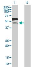 Western blot - PKLR antibody (ab89071)