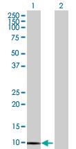 Western blot - S100 Calcium Binding Protein A13 antibody (ab89074)