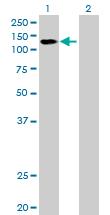 Western blot - DDX42 antibody (ab89075)