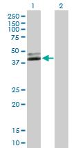 Western blot - NUDT9 antibody (ab89076)